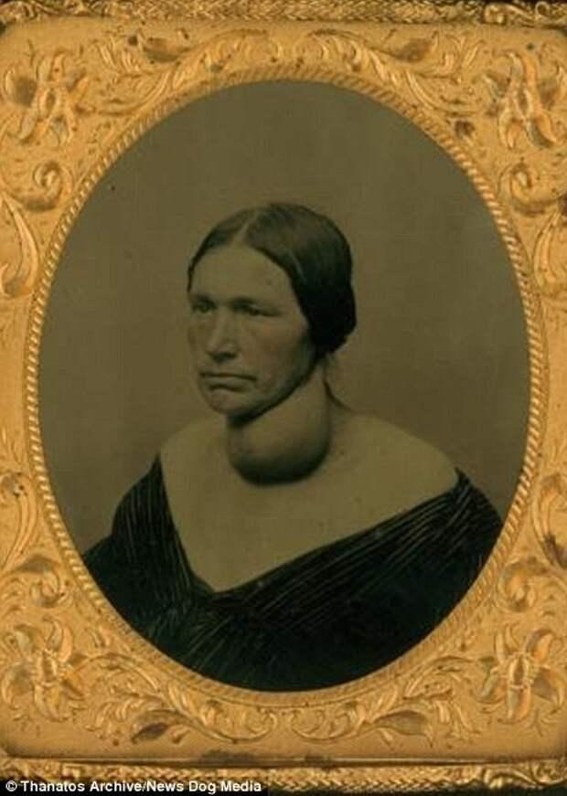 Женщина с опухолью щитовидной железы деформация, люди