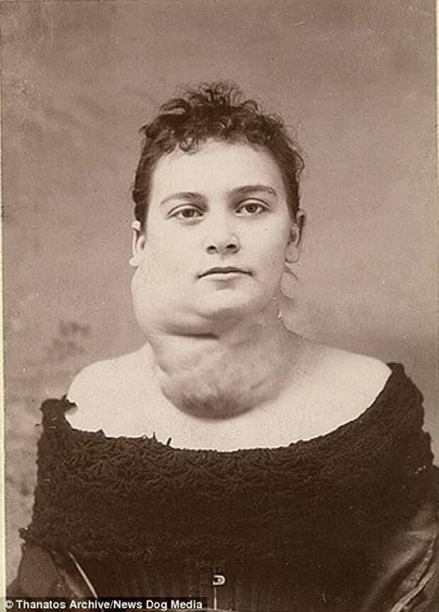 Девушка на фото страдала от разрастания щитовидной железы деформация, люди