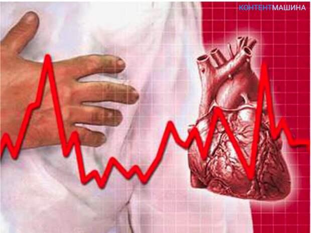 Сердечная аритмия - что это такое и как лечить