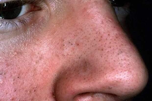 Прыщи на зрелой коже: как от них избавиться