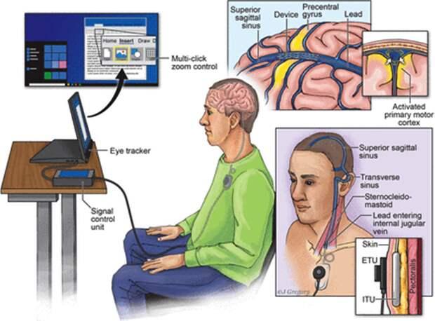 Ученые создали внутривенный интерфейс мозг-компьютер