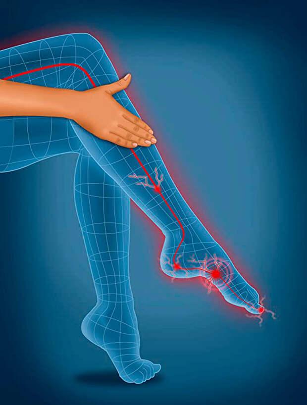 Как проверить здоровье ног: советы ортопедов