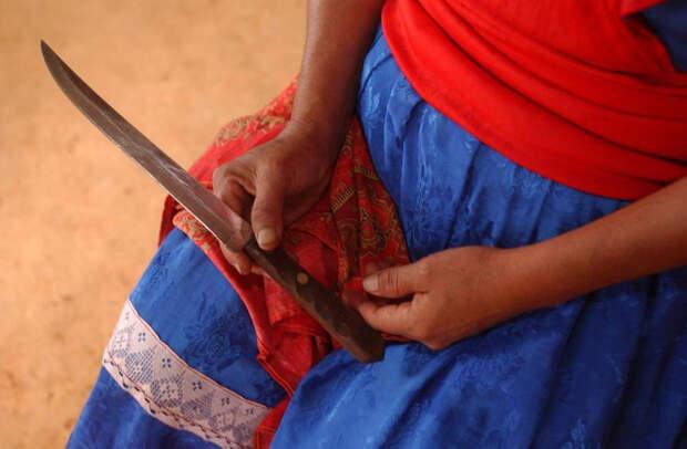 Мексиканка стала сенсацией, сделав себе кесарево сечение кухонным ножом