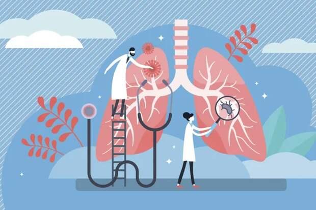 Признаки бессимптомной пневмонии