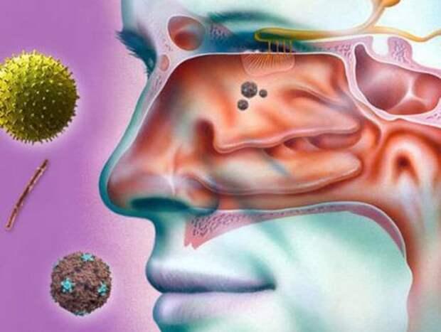 фото1 бывает ли насморк при коронавирусе
