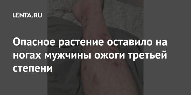 Опасное растение оставило на ногах мужчины ожоги третьей степени