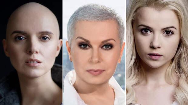 Алла Мазур, Мика Ньютон и Янина Соколова: украинские звезды, которые победили рак, а также их истории болезни