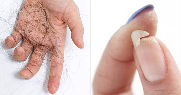Ломкие ногти? Выпадение волос? Бессонница? Вам помогут всего 2 столовые ложки этой смеси