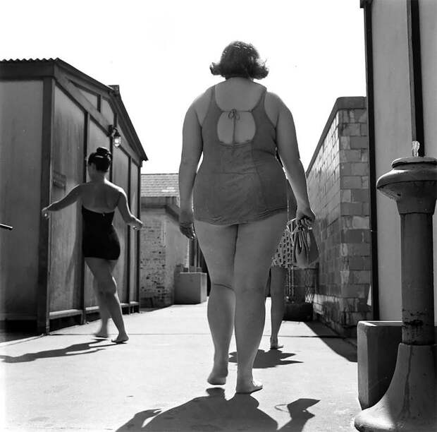 Чума избыточного веса: фотоистория LIFE про похудение американки Дороти