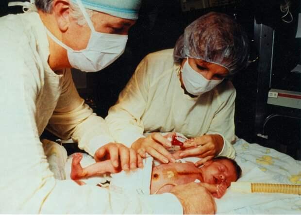 Доктор Бэйли кормит малышку Фэй после успешно проведённой операции по пересадке обезьяньего сердца.