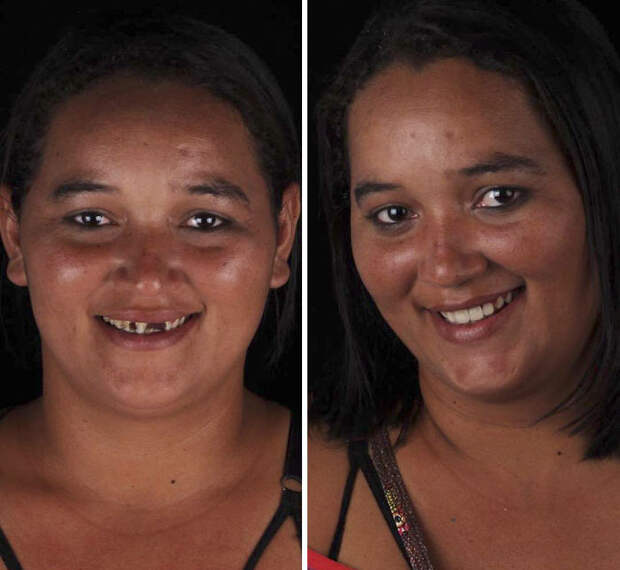 Бразильский стоматолог осчастливил 9 людей, сделав им «голливудские» улыбки