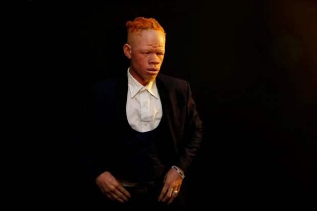 9 фоток с конкурса красоты для альбиносов