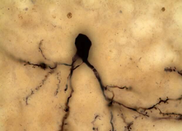 Шипиковый нейрон