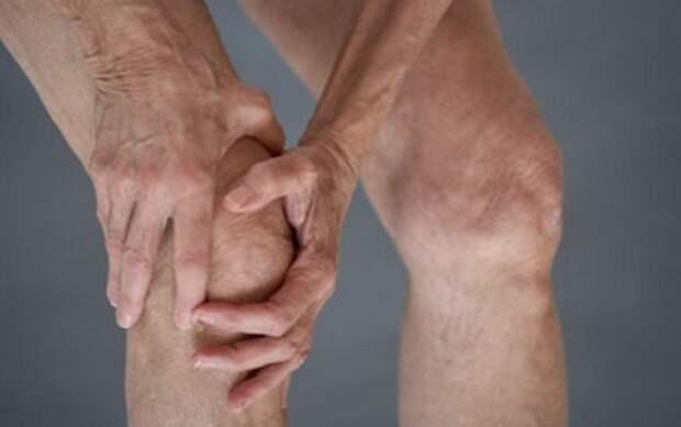 Остеоартроз нижних конечностей