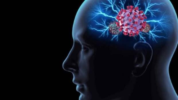 Удар в голову: риск инсульта при COVID в 8 раз выше, чем при гриппе