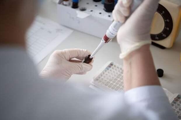 В России зарегистрировали 8 183 новых случая заражения COVID-19