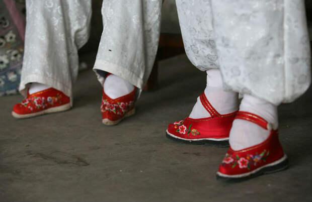 В деревне «Связанные ноги» живут последние китаянки, страдающие от древней же...