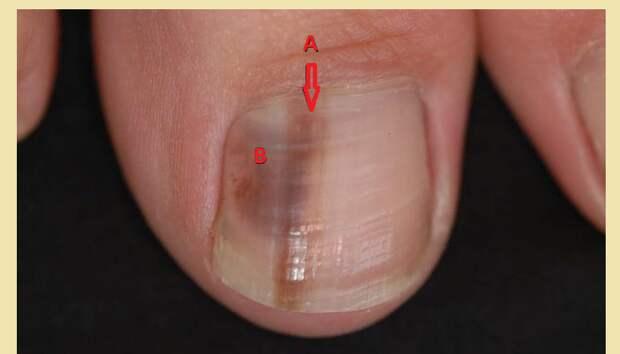 Меланонихия: чернеют ногти на пальцах ног