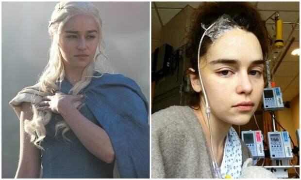 Эмилия Кларк поделилась фото из больницы после инсульта Дейенерис, Эмилия Кларк, болезнь, звезды, знаменитости, игра престолов, фото, эмилия кларк фото