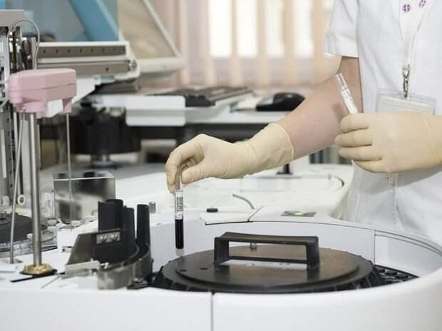 Нобелевский лауреат Люк Монтанье заявил, что коронавирус создали ученые