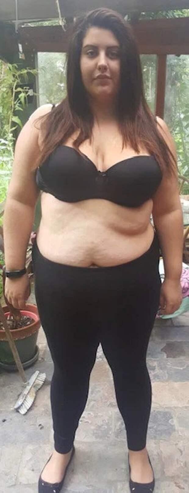 Похудела, чтобы небыть бревном впостели: девушка сбросила 64кг для яркой интимной жизни