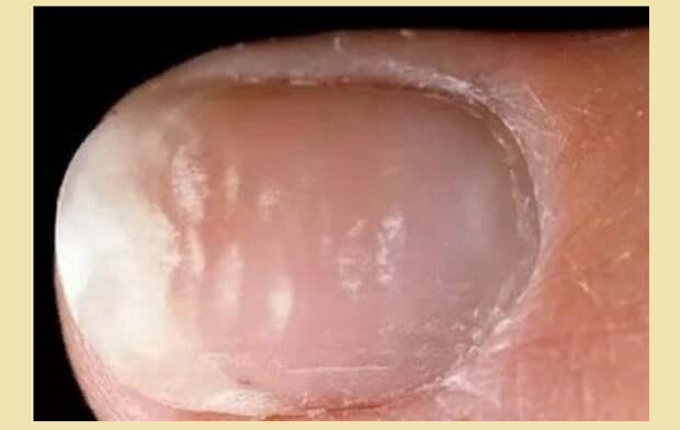 Лейконихия — болит ноготь