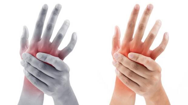 Почему немеют руки? Это не страшно? Отвечает невролог