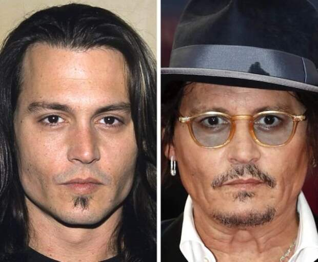 Как с годами изменились лица знаменитостей крупным планом