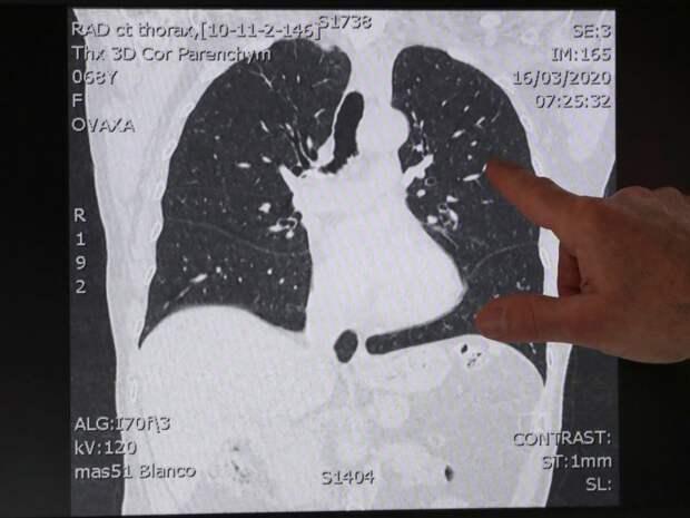 Коронавирус: как вирусная пневмония поражает легкие и приводит к смерти