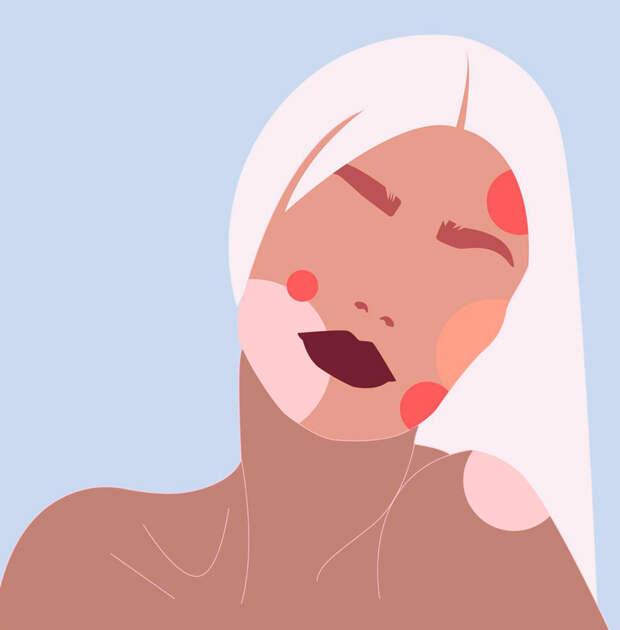 Тонкая связь: гормональная система и проблемная кожа