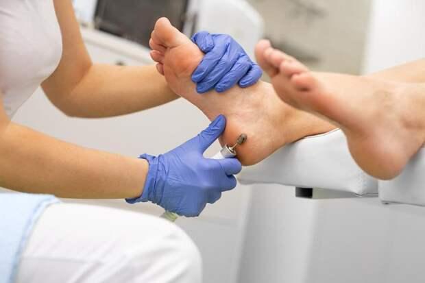 Грубая кожа на локтях и пятках: что делать при гиперкератозе