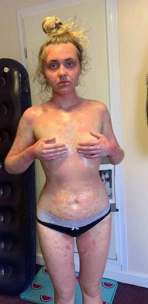 Девушка стала вегетарианкой и избавилась от страшной экземы