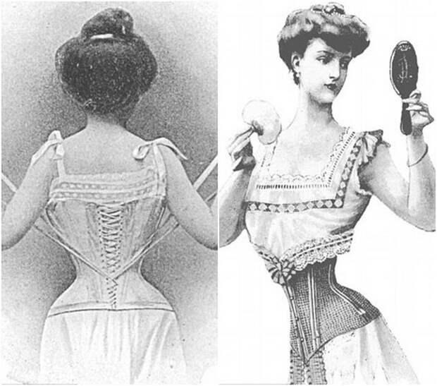 Мышьяк, радиация, паразиты и другие опасные способы, которыми женщины боролись за красоту