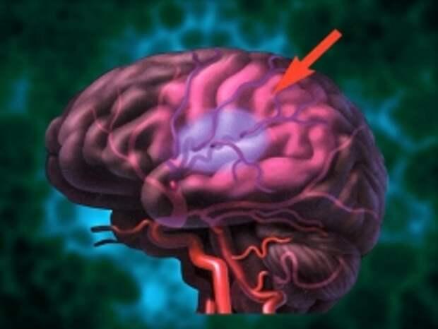 Ученые открыли новую методику восстановления организма после инсульта