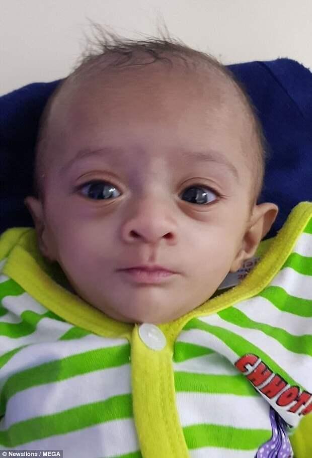 Спустя полгода, малышку наконец выписали из больницы. Мануши считается самым маленьким выжившим ребенком, когда-либо родившимся на территории Азии. ynews, дети, медицина, новорожденные, новости, ребенок, спасение, фото