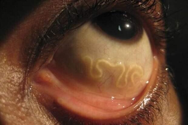 Где обитают паразиты в организме человека
