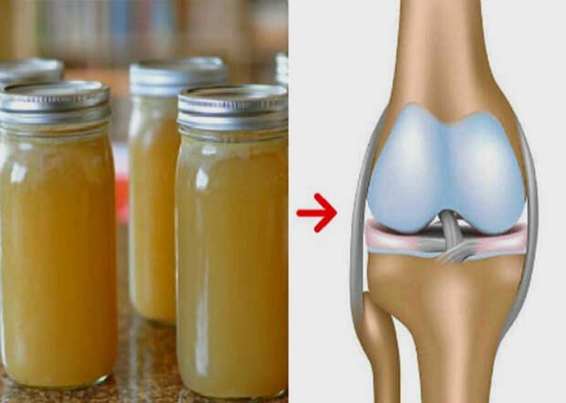 Поможет ли пищевой желатин сохранить здоровыми суставы?