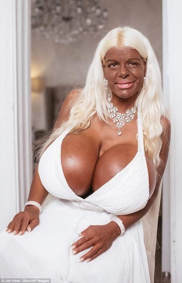 Модель потратила $60 000 на самую большую грудь в Европе модель, пластическая хирургия, странные люди, супербюст
