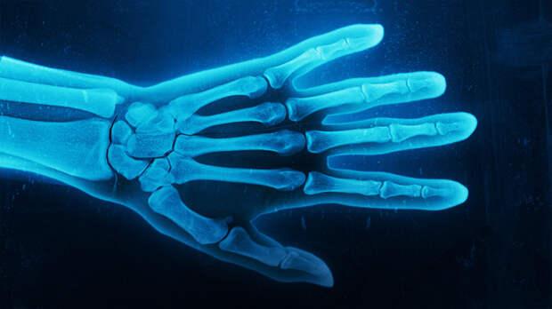 Создаем рентгеновский снимок из фотографии