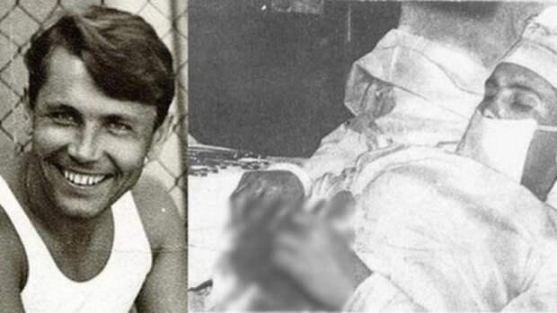 Как хирург-полярник Леонид Рогозов сам себе вырезал аппендикс.