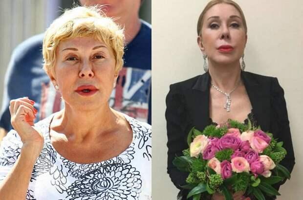 От Долиной до Пугачевой и Бабкиной — российские знаменитости, которым пластика пошла только на пользу