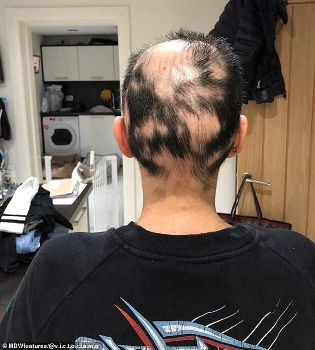 Облысев, парикмахерша изБритании побрилась под ноль итеперь вдохновляет других своим примером