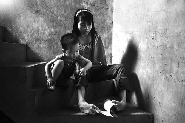 Но девушка сумела приспособиться и может выполнять всю домашнюю работу вьетнам, девушка, инвалид