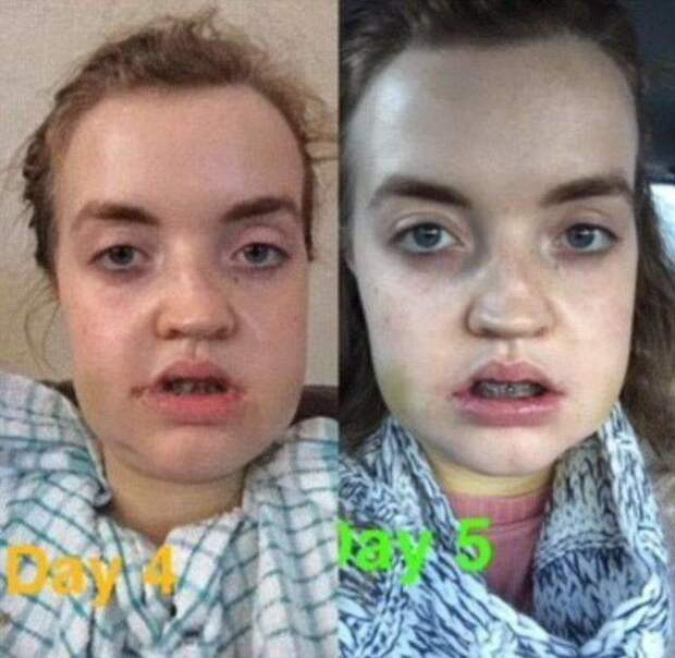 В ходе 4-часовой операции врачи выдвинули верхнюю челюсть на 7 мм вперед, а нижнюю отодвинули на 8 мм назад в мире, внешность, до и после, лицо, люди, операция, пластическая хирургия