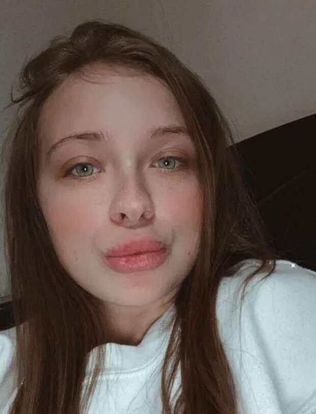 Девушка хотела увеличить губы гелем, носитуация вышла из-под контроля