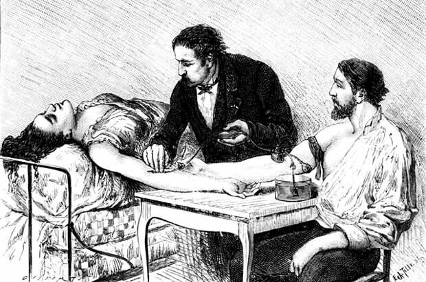 Переливание крови в 1882 году.