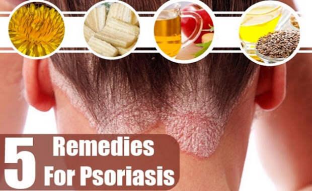 5 мощных естественных средств для лечения псориаза