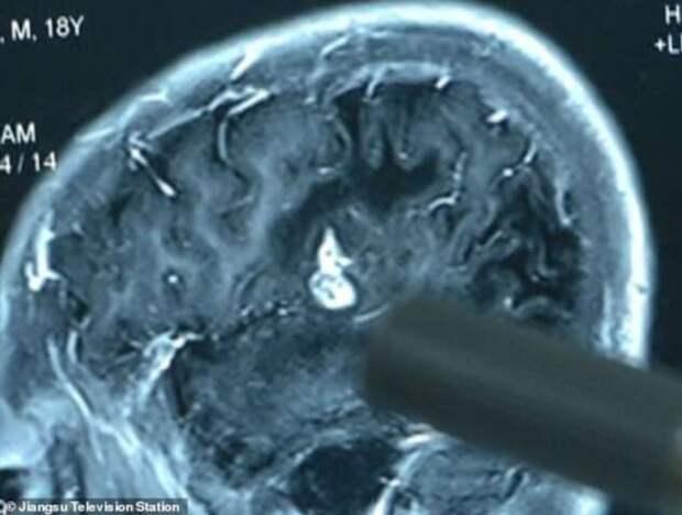 Из головы китайца удалили 12-сантиметрового червя (5 фото)