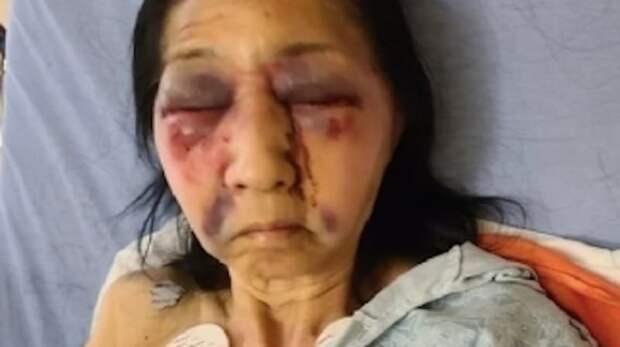 70-летнюю женщину избили в автобусе, приняв за азиатку