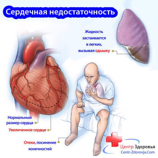Картинки по запросу сердечная недостаточность отеки ноги